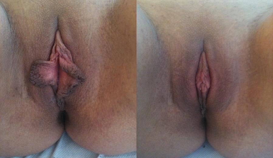 Внутренние половые губы больше по размерам