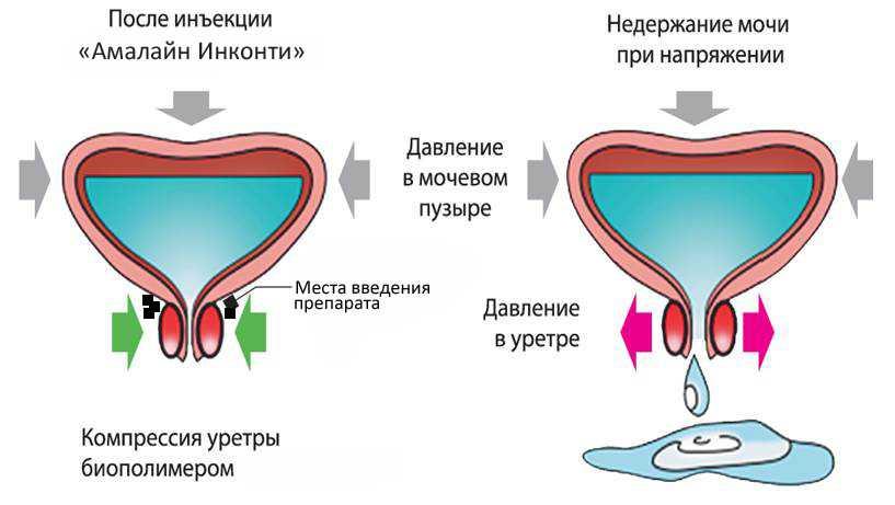 Лечение герпеса на губе народными методами
